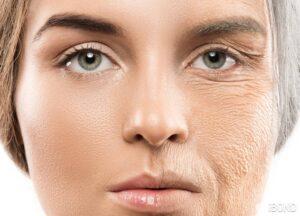 نقش کو آنزیم کیوتن در سلامت پوست و مو