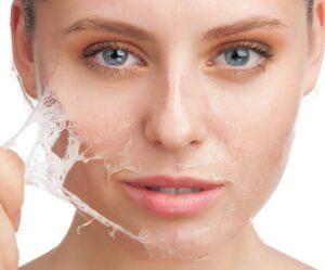 روش های خانگی لایه برداری از پوست چرب